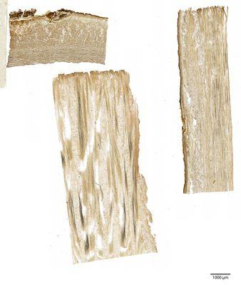 A specimen from Kew's microscope slide collection - bark. Image ref: KMIC000633_2016.09.13-S4