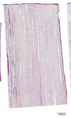 A specimen from Kew's microscope slide collection - tangential longitudinal section of wood. Image ref: KMIC000784_2016.10.28-S2
